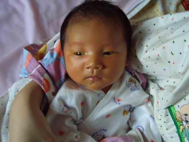 母乳性黄疸可怕吗 宝宝母乳性黄疸怎么办?
